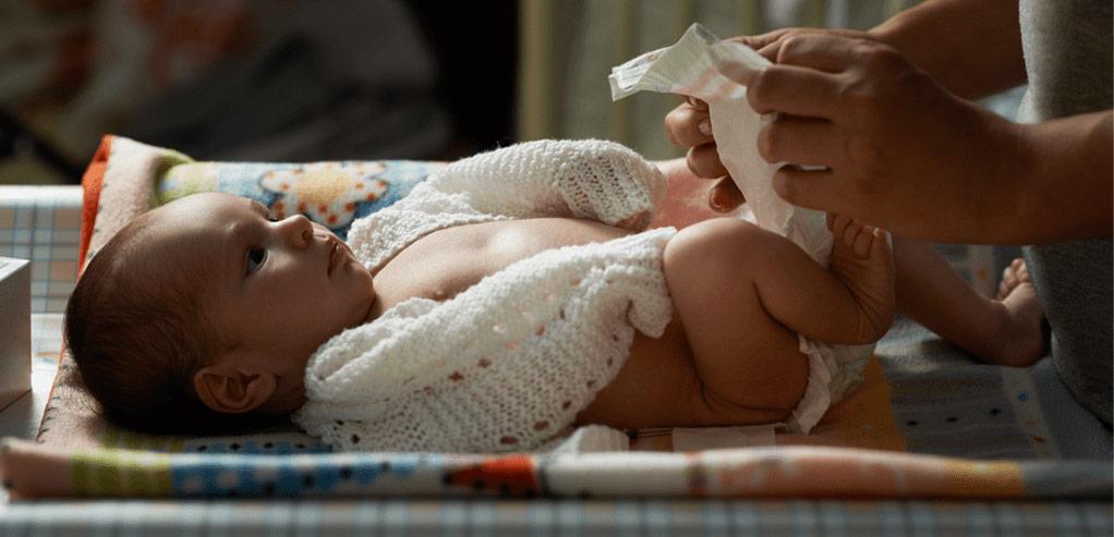 Cegah Iritasi dan Masalah Kulit Bayi dengan Baby Cream